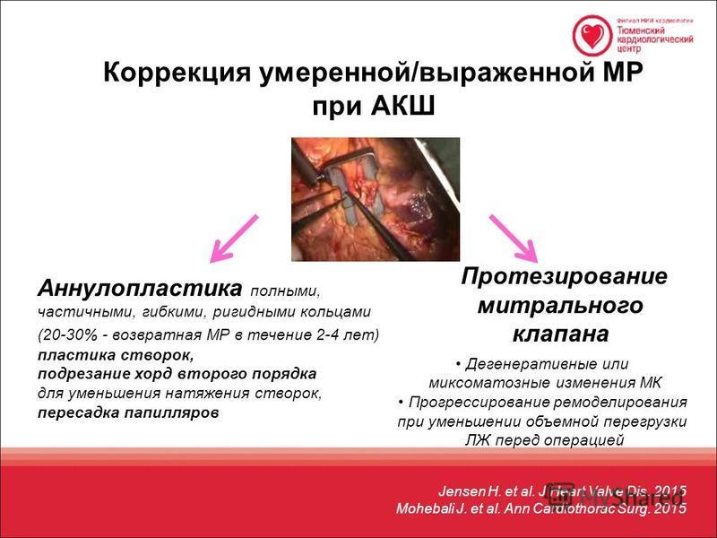 Коррекция умеренной/выраженной МР при АКШ Аннулопластика полными, частичными, гибкими, ригидными кольцами (20-30% - возвратная МР в течение 2-4 лет) пластика створок, подрезание хорд второго порядка для уменьшения натяжения створок, пересадка капилля