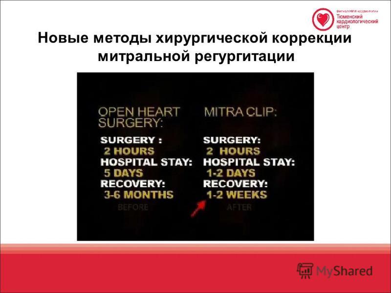 Новые методы хирургической коррекции митральной регургитации