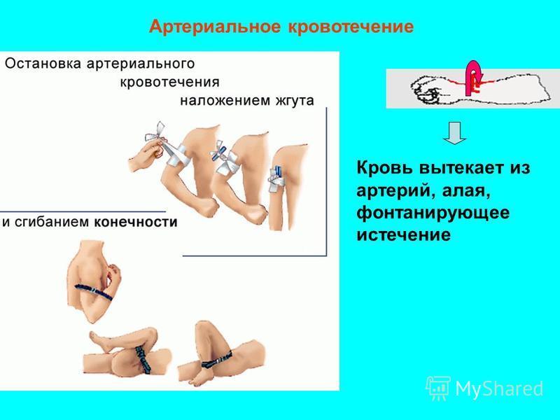 Артериальное кровотечение Кровь вытекает из артерий, алая, фонтанирующее истечение