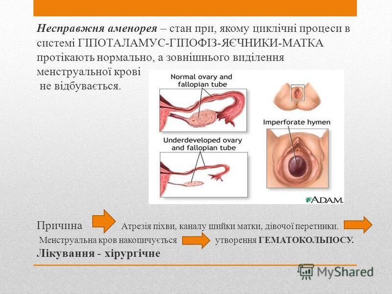 Несправжня аменорея – стан при, якому циклічні процеси в системі ГІПОТАЛАМУС-ГІПОФІЗ-ЯЄЧНИКИ-МАТКА протікають нормально, а зовнішнього виділення менструальної крові не відбувається. Причина Атрезія піхви, каналу шийки матки, дівочої перетинки. Менстр