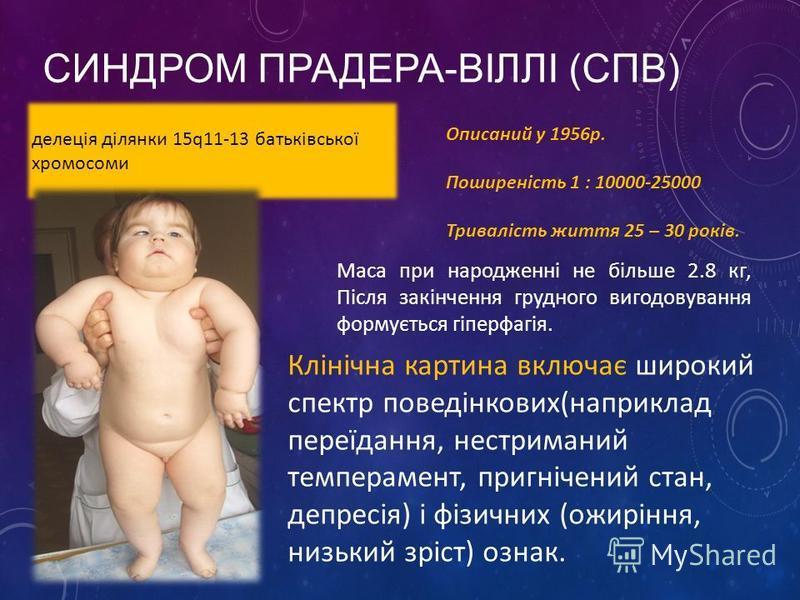 СИНДРОМ ПРАДЕРА-ВІЛЛІ (СПВ) делеція ділянки 15q11-13 батьківської хромосоми Описаний у 1956р. Поширеність 1 : 10000-25000 Тривалість життя 25 – 30 років. Клінічна картина включає широкий спектр поведінкових(наприклад переїдання, нестриманий темпераме