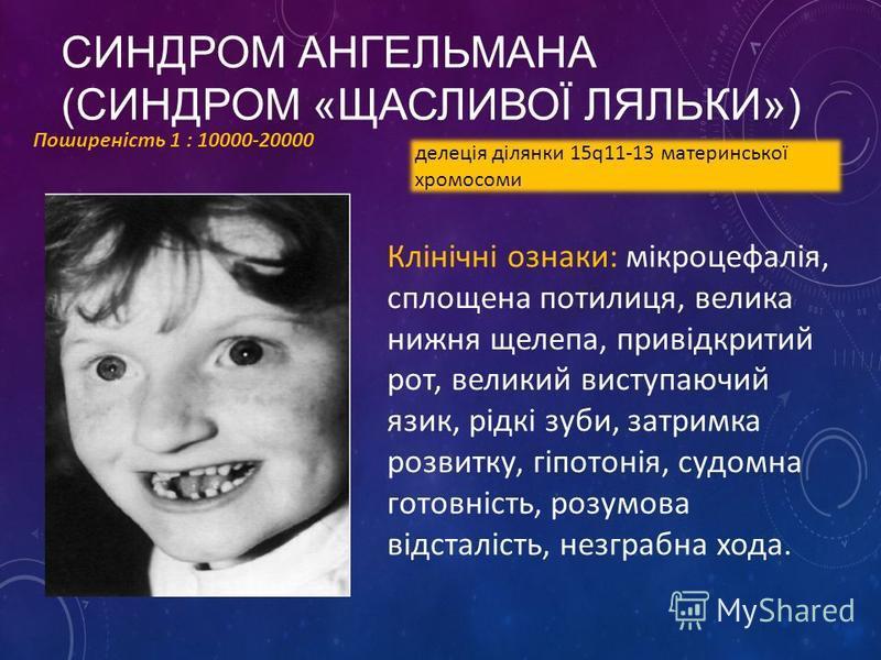 СИНДРОМ АНГЕЛЬМАНА (СИНДРОМ «ЩАСЛИВОЇ ЛЯЛЬКИ») Поширеність 1 : 10000-20000 делеція ділянки 15q11-13 материнської хромосоми Клінічні ознаки: мікроцефалія, сплощена потилиця, велика нижня щелепа, привідкритий рот, великий виступаючий язик, рідкі зуби,