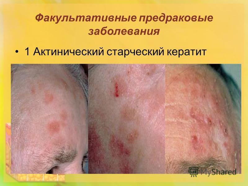 Факультативные предраковые заболевания 1 Актинический старческий кератит