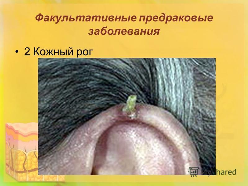Факультативные предраковые заболевания 2 Кожный рог