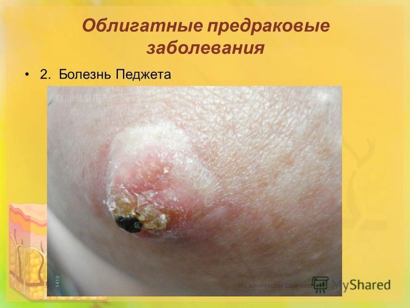 Облигатные предраковые заболевания 2. Болезнь Педжета