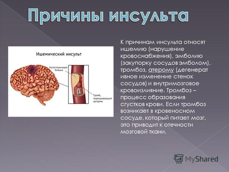 К причинам инсульта относят ишемию (нарушение кровоснабжения), эмболию (закупорку сосудов эмболом), тромбоз, атерому (дегенеративное изменение стенок сосудов) и внутримозговое кровоизлияние. Тромбоз – процесс образования сгустков крови. Если тромбоз