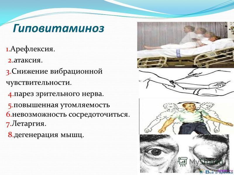 Гиповитаминоз 1.Арефлексия. 2.атаксия. 3. Снижение вибрационной чувствительности. 4. парез зрительного нерва. 5. повышенная утомляемость 6. невозможность сосредоточиться. 7.Летаргия. 8. дегенерация мышц.