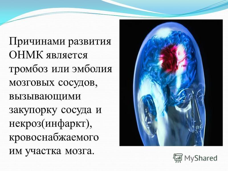 Причинами развития ОНМК является тромбоз или эмболия мозговых сосудов, вызывающими закупорку сосуда и некроз(инфаркт), кровоснабжаемого им участка мозга.