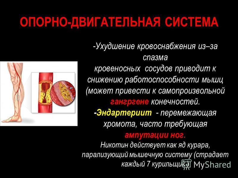 ОПОРНО-ДВИГАТЕЛЬНАЯ СИСТЕМА -Ухудшение кровоснабжения из–за спазма кровеносных сосудов приводит к снижению работоспособности мышц (может привести к самопроизвольной гангрена конечностей. -Эндартериит - перемежающая хромота, часто требующая ампутации