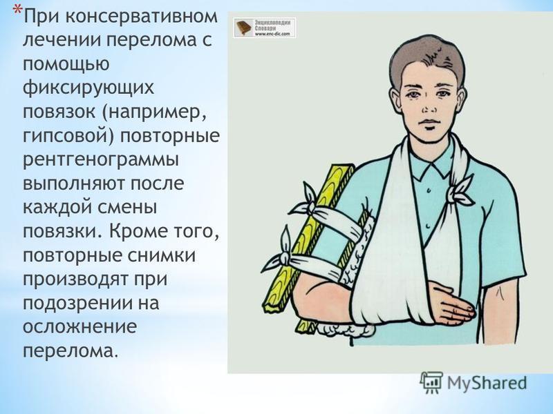 * При консервативном лечении перелома с помощью фиксирующих повязок (например, гипсовой) повторные рентгенограммы выполняют после каждой смены повязки. Кроме того, повторные снимки производят при подозрении на осложнение перелома.