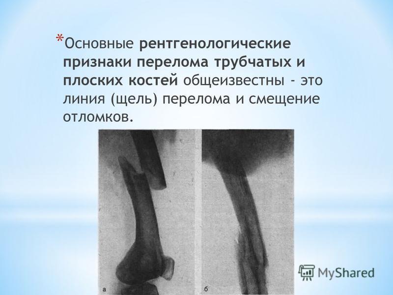 * Основные рентгенологические признаки перелома трубчатых и плоских костей общеизвестны - это линия (щель) перелома и смещение отломков.