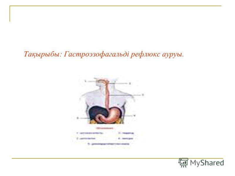 Тақырыбы: Гастроэзофагальді рефлюкс ауруы.