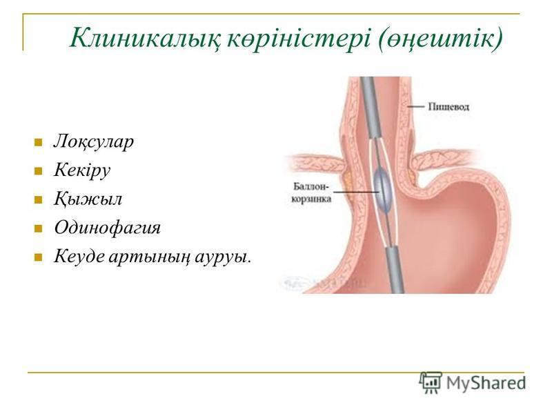 Клиникалық көріністері (өңештік) Лоқсулар Кекіру Қыжыл Одинофагия Кеуде артының ауруы.