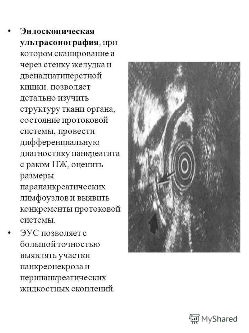Эндоскопическая ультрасонография, при котором сканирование а через стенку желудка и двенадцатиперстной кишки. позволяет детально изучить структуру ткани органа, состояние протоковой системы, провести дифференциальную диагностику панкреатита с раком П