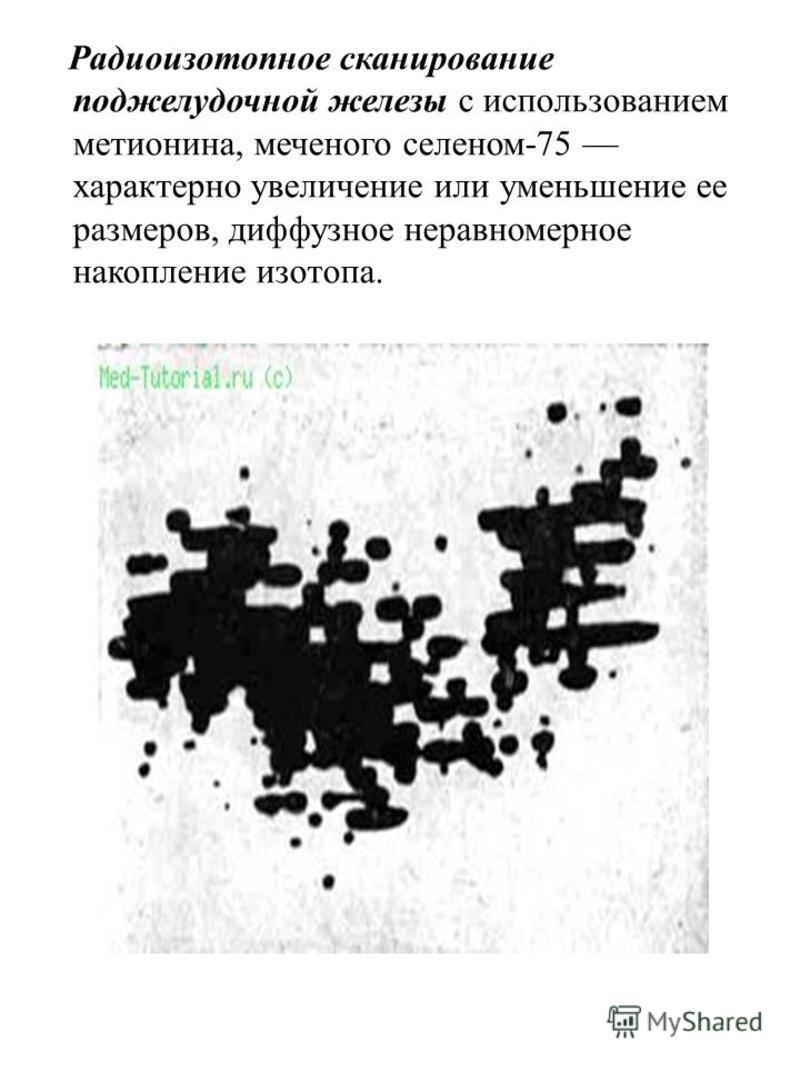 Радиоизотопное сканирование поджелудочной железы с использованием метионина, меченого селеном-75 характерно увеличение или уменьшение ее размеров, диффузное неравномерное накопление изотопа.