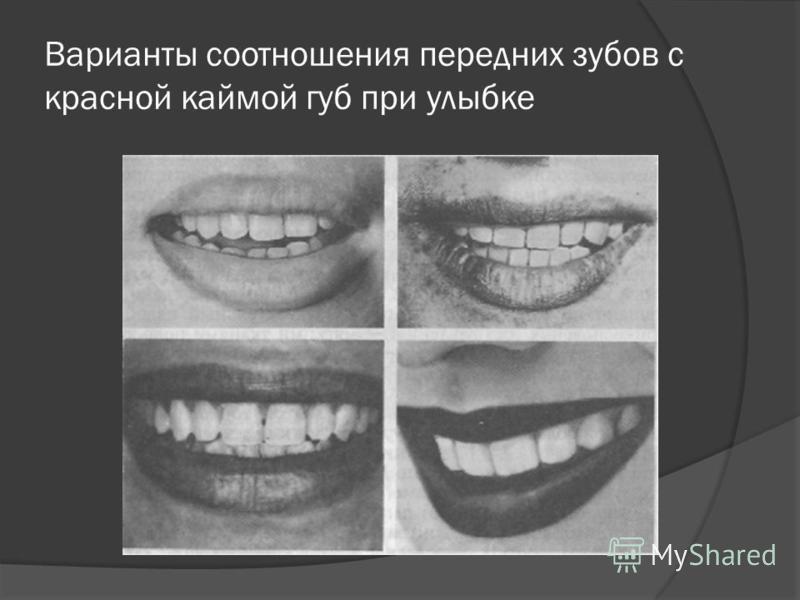 Варианты соотношения передних зубов с красной каймой губ при улыбке