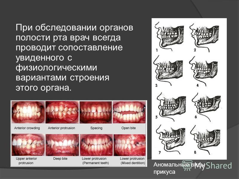 При обследовании органов полости рта врач всегда проводит сопоставление увиденного с физиологическими вариантами строения этого органа. Аномальные виды прикуса