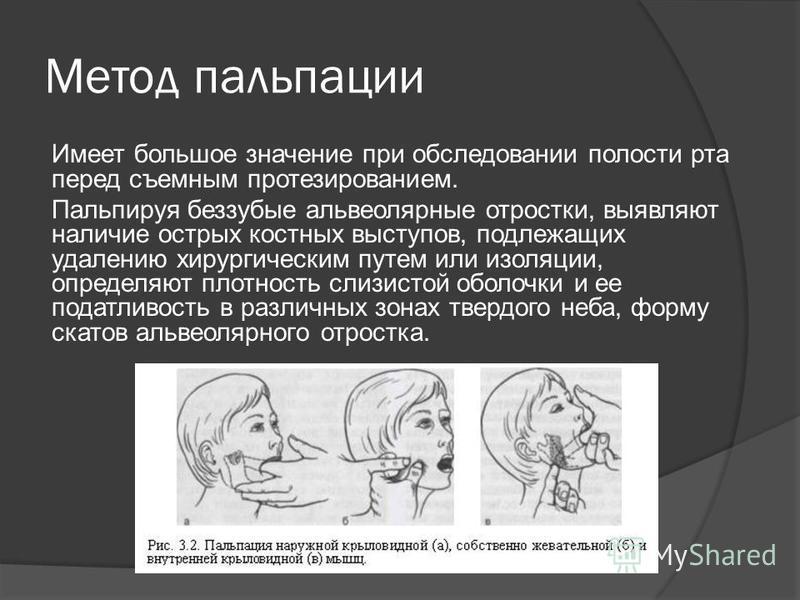Метод пальпации Имеет большое значение при обследовании полости рта перед съемным протезированием. Пальпируя беззубые альвеолярные отростки, выявляют наличие острых костных выступов, подлежащих удалению хирургическим путем или изоляции, определяют пл