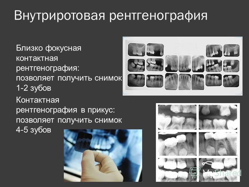 Внутриротовая рентгенография Близко фокусная контактная рентгенография: позволяет получить снимок 1-2 зубов Контактная рентгенография в прикус: позволяет получить снимок 4-5 зубов