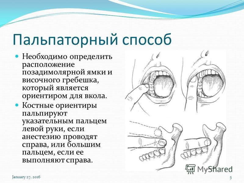 Пальпаторный способ Необходимо определить расположение позади молярной ямки и височного гребешка, который является ориентиром для вокала. Костные ориентиры пальпируют указательным пальцем левой руки, если анестезию проводят справа, или большим пальце