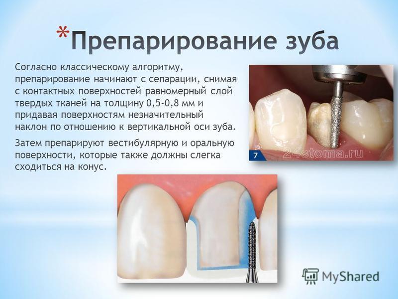 Кариес зубов и этапы препарирование