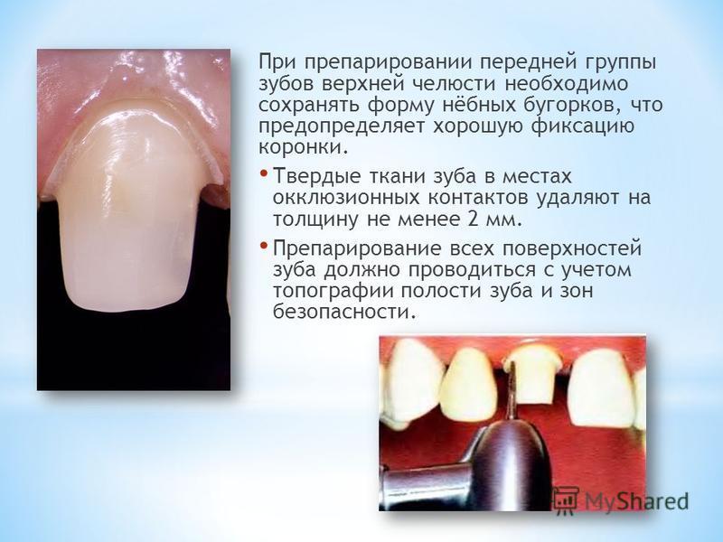 Подготовка зуба под коронку цена