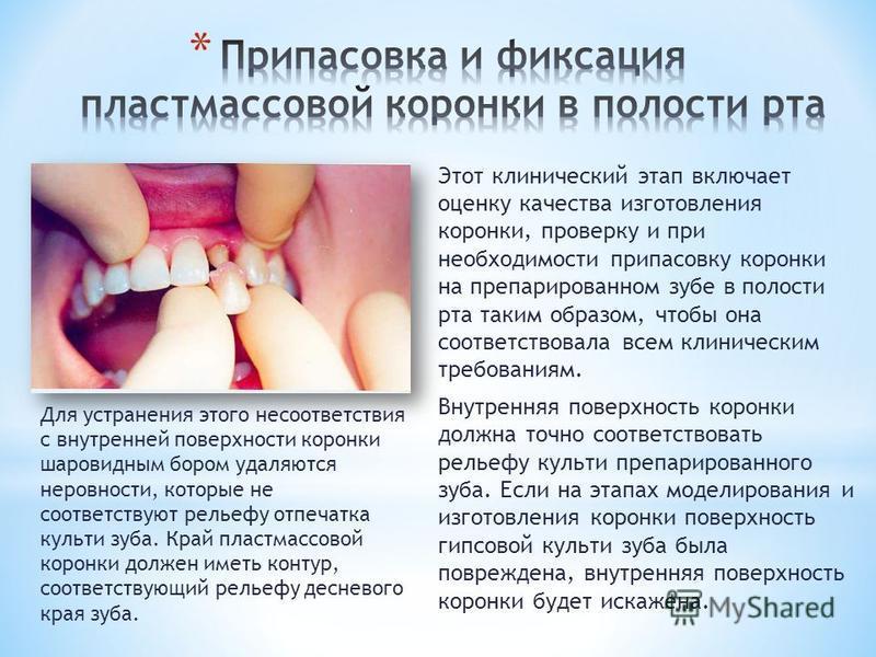 Этот клинический этап включает оценку качества изготовления коронки, проверку и при необходимости припасовку коронки на препарированном зубе в полости рта таким образом, чтобы она соответствовала всем клиническим требованиям. Внутренняя поверхность к