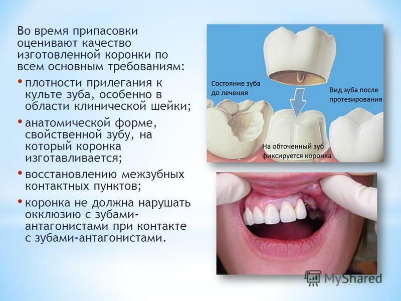 Во время припасовки оценивают качество изготовленной коронки по всем основным требованиям: плотности прилегания к культе зуба, особенно в области клинической шейки; анатомической форме, свойственной зубу, на который коронка изготавливается; восстанов