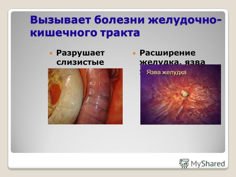 Вызывает болезни желудочно- кишечного тракта Разрушает слизистые желудка и кишечника Расширение желудка, язва желудка