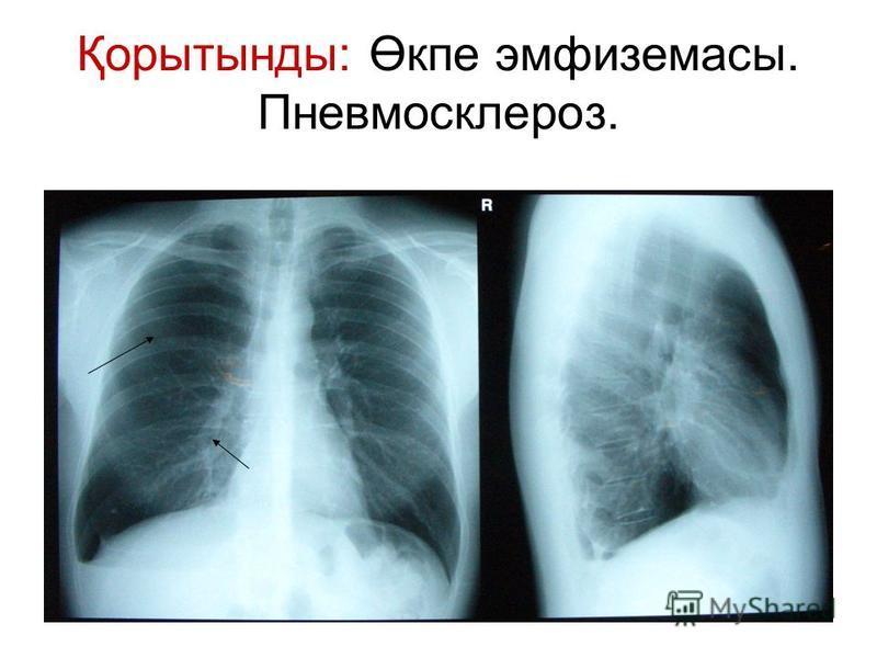 Қорытынды: Өкпе эмфиземасы. Пневмосклероз.