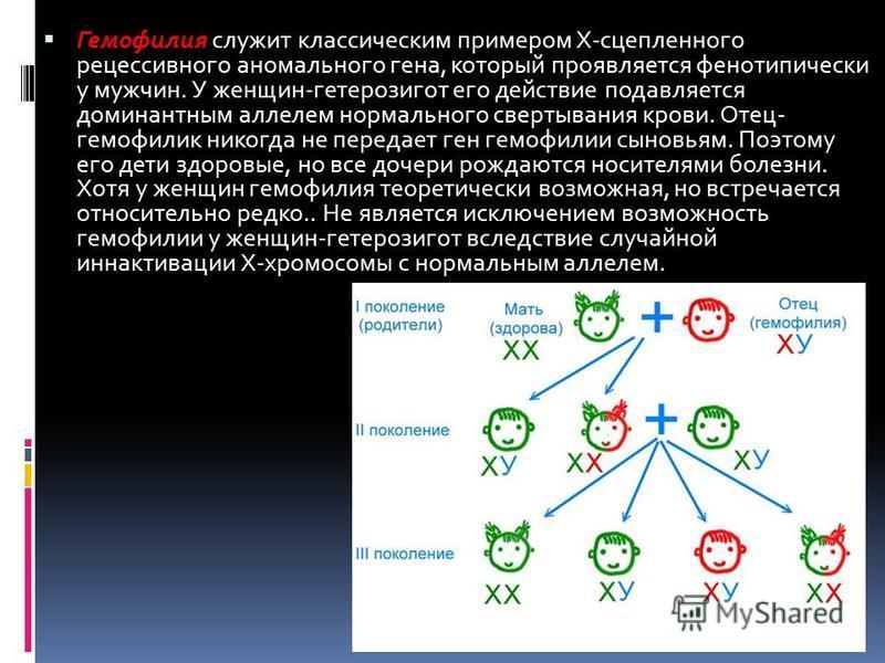 Гемофилия служит классическим примером Х-сцепленного рецессивного аномального гена, который проявляется фенотипически у мужчин. У женщин-гетерозигот его действие подавляется доминантным аллелем нормального свертывания крови. Отец- гемофилия никогда н