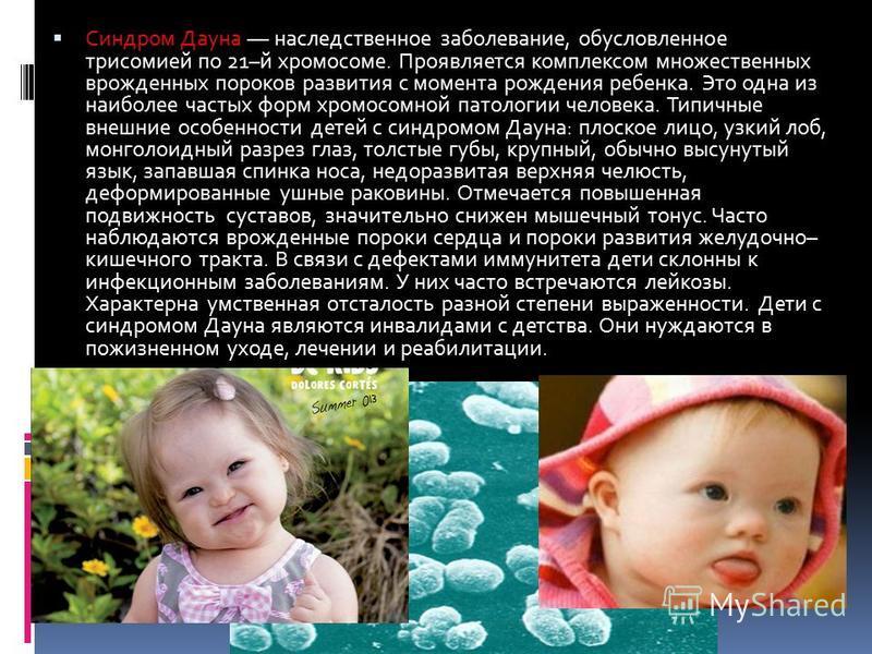 Синдром Дауна –– наследственное заболевание, обусловленное трисомией по 21–й хромосоме. Проявляется комплексом множественных врожденных пороков развития с момента рождения ребенка. Это одна из наиболее частых форм хромосомной патологии человека. Типи