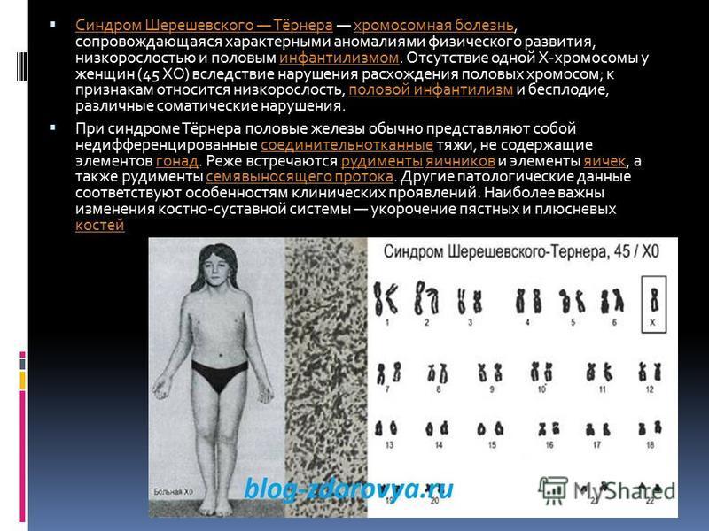 Синдром Шерешевского Тёрнера хромосомная болезнь, сопровождающаяся характерными аномалиями физического развития, низкорослостью и половым инфантилизмом. Отсутствие одной Х-хромосомы у женщин (45 ХО) вследствие нарушения расхождения половых хромосом;