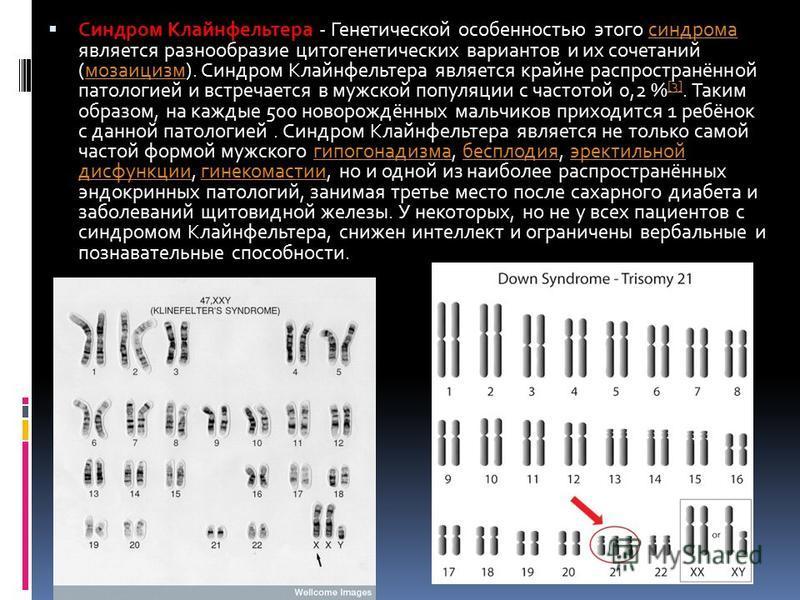 Синдром Клайнфельтера - Генетической особенностью этого синдрома является разнообразие цитогенетических вариантов и их сочетаний (мозаицизм). Синдром Клайнфельтера является крайне распространённой патологией и встречается в мужской популяции с частот