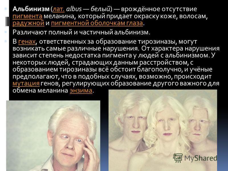 Альбинизм (лат. albus белый) врождённое отсутствие пигмента меланина, который придает окраску коже, волосам, радужной и пигментной оболочкам глаза.лат. пигмента радужной пигментной оболочкам глаза Различают полный и частичный альбинизм. В генах, отве