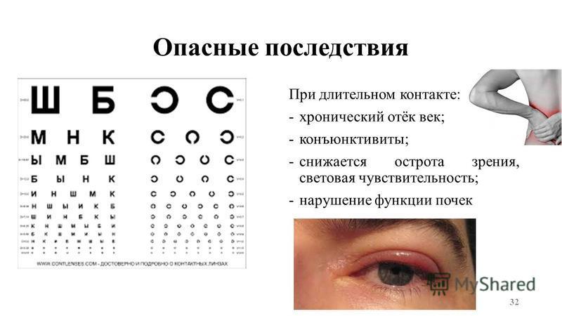 Опасные последствия При длительном контакте: -хронический отёк век; -конъюнктивиты; -снижается острота зрения, световая чувствительность; -нарушение функции почек 32