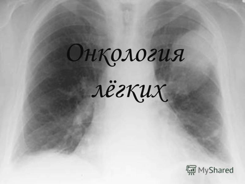 Онкология лёгких