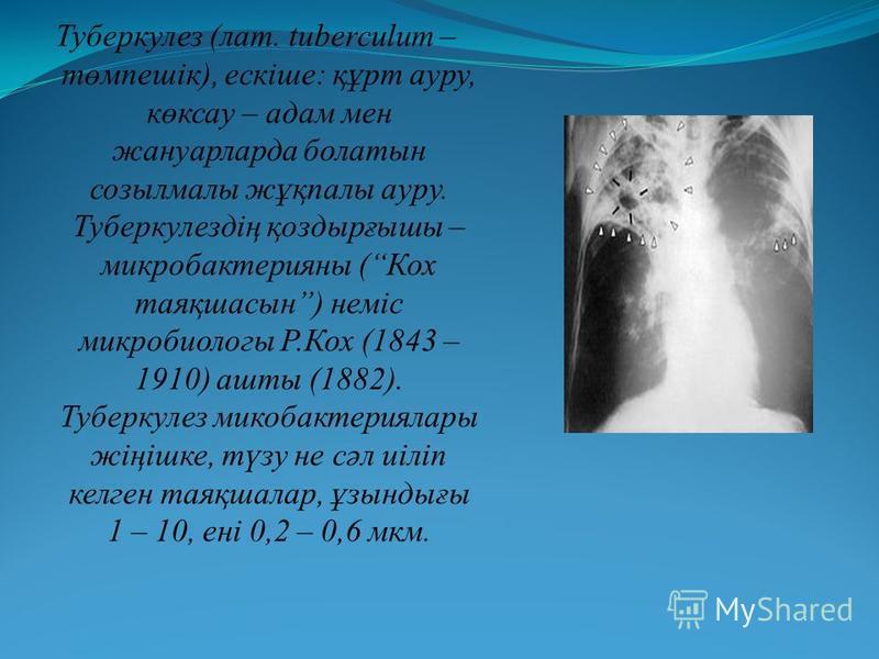 Туберкулез (лат. tuberculum – төмпешік), ескіше: құрт ауру, көксау – адам мен жануарларда болатын созылмалы жұқпалы ауру. Туберкулездің қоздырғышы – микробактерияны (Кох таяқшасын) неміс микробиологы Р.Кох (1843 – 1910) ашты (1882). Туберкулез микоба