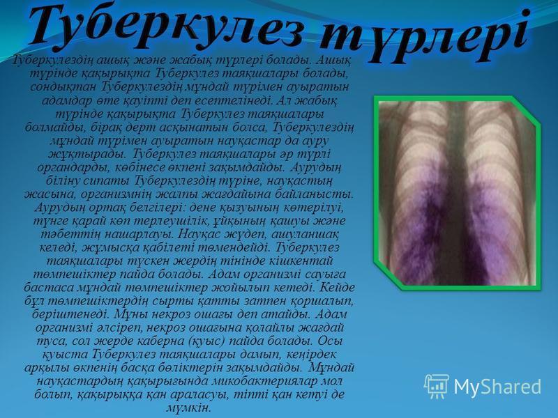 Туберкулездің ашық және жабық түрлері болады. Ашық түрінде қақырықта Туберкулез таяқшалары болады, сондықтан Туберкулездің мұндай түрімен ауыратын адамдар өте қауіпті деп есептелінеді. Ал жабық түрінде қақырықта Туберкулез таяқшалары болмайды, бірақ