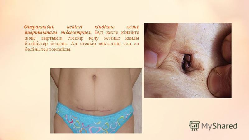 Зәр шығару жүйесіндегі эндометриоз жиі қуықта болады. Оларға қынап арқылы тара лады. Симптомы зәр шығару кезіндегі ауру сезімі болады. Эндометрий ішке қарай еніп өсетін бокса,зәр қан араласқан болады. Егер несет ағарда кездессе хонда ол тарылып несет