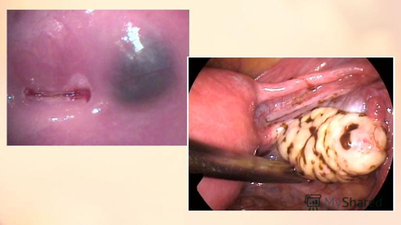Жіңішке ішек эндометриозы