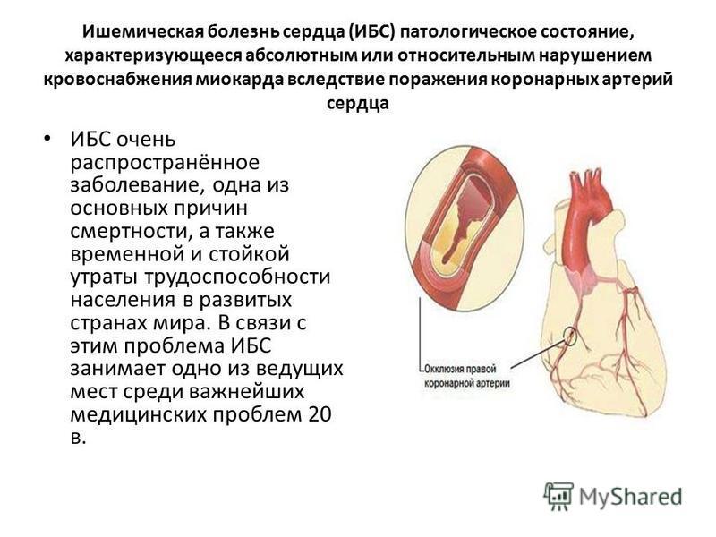 Ишемическая болезнь сердца (ИБС) патологическое состояние, характеризующееся абсолютным или относительным нарушением кровоснабжения миокарда вследствие поражения коронарных артерий сердца ИБС очень распространённое заболевание, одна из основных причи