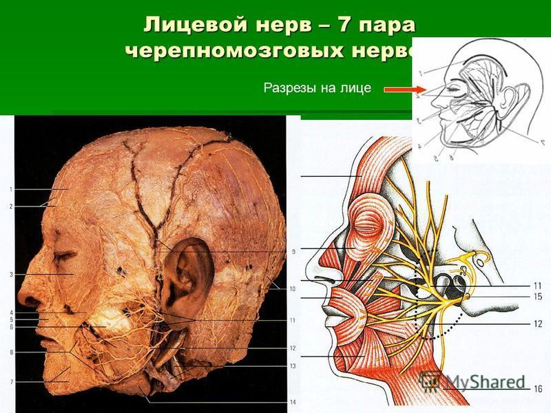 Лицевой нерв – 7 пара черепно-мозговых нервов Разрезы на лице