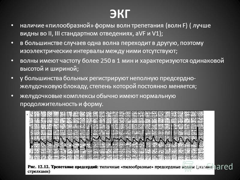 ЭКГ наличие «пилообразной» формы волн трепетания (волн F) ( лучше видны во II, III стандартном отведениях, aVF и V1); в большинстве случаев одна волна переходит в другую, поэтому изоэлектрические интервалы между ними отсутствуют; волны имеют частоту