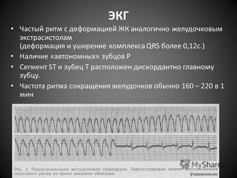 ЭКГ Частый ритм с деформацией ЖК аналогично желудочковым экстрасистолам (деформация и уширение комплекса QRS более 0,12 с.) Наличие «автономных» зубцов Р Сегмент ST и зубец Т расположен дискордантно главному зубцу. Частота ритма сокращения желудочков