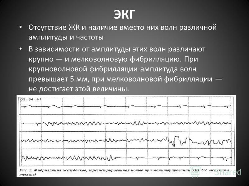 ЭКГ Отсутствие ЖК и наличие вместо них волн различной амплитуды и частоты В зависимости от амплитуды этих волн различают крупно и мелко волновую фибрилляцию. При крупно волновой фибрилляции амплитуда волн превышает 5 мм, при мелко волновой фибрилляци