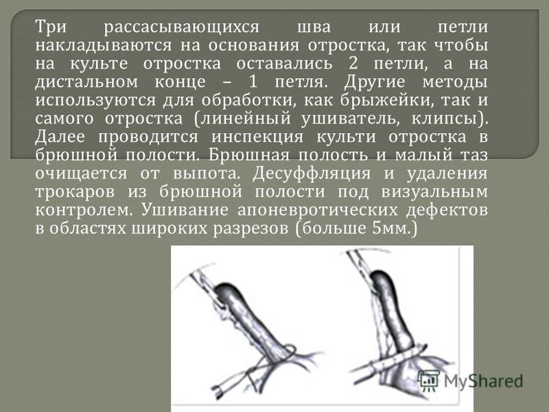 Три рассасывающихся шва или петли накладываются на основания отростка, так чтобы на культе отростка оставались 2 петли, а на дистальном конце – 1 петля. Другие методы используются для обработки, как брыжейки, так и самого отростка ( линейный ушивател