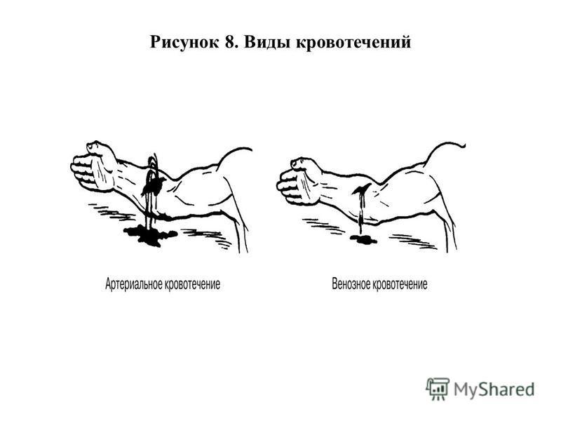 Рисунок 8. Виды кровотечений