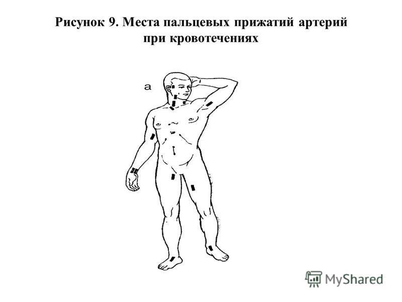 Рисунок 9. Места пальцевых прижатий артерий при кровотечениях