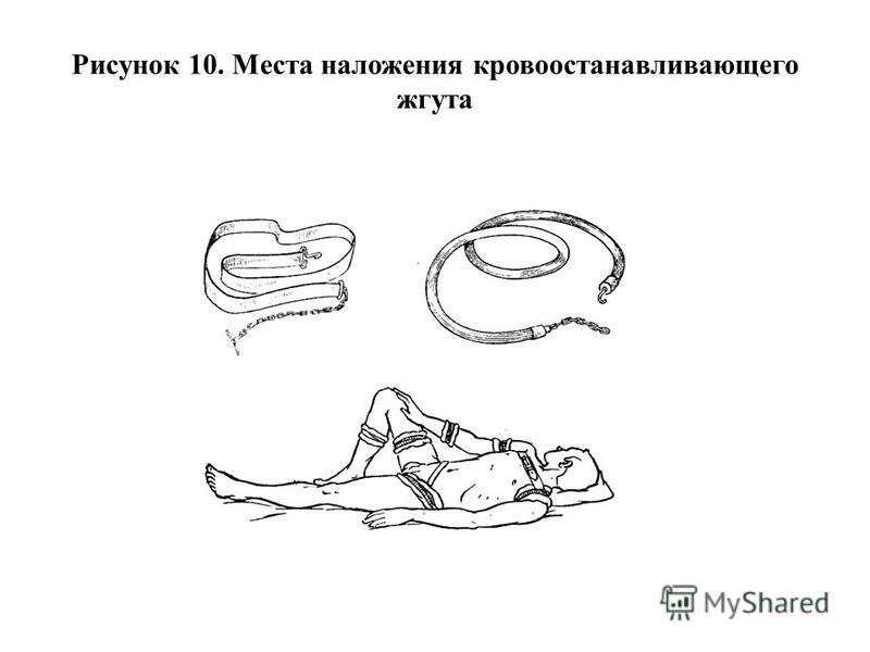 Рисунок 10. Места наложения кровоостанавливающего жгута